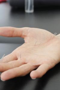 La Acropuntura, es una técnica Coreana reflexoterapéutica del Dr. Koryo Sooji Chin