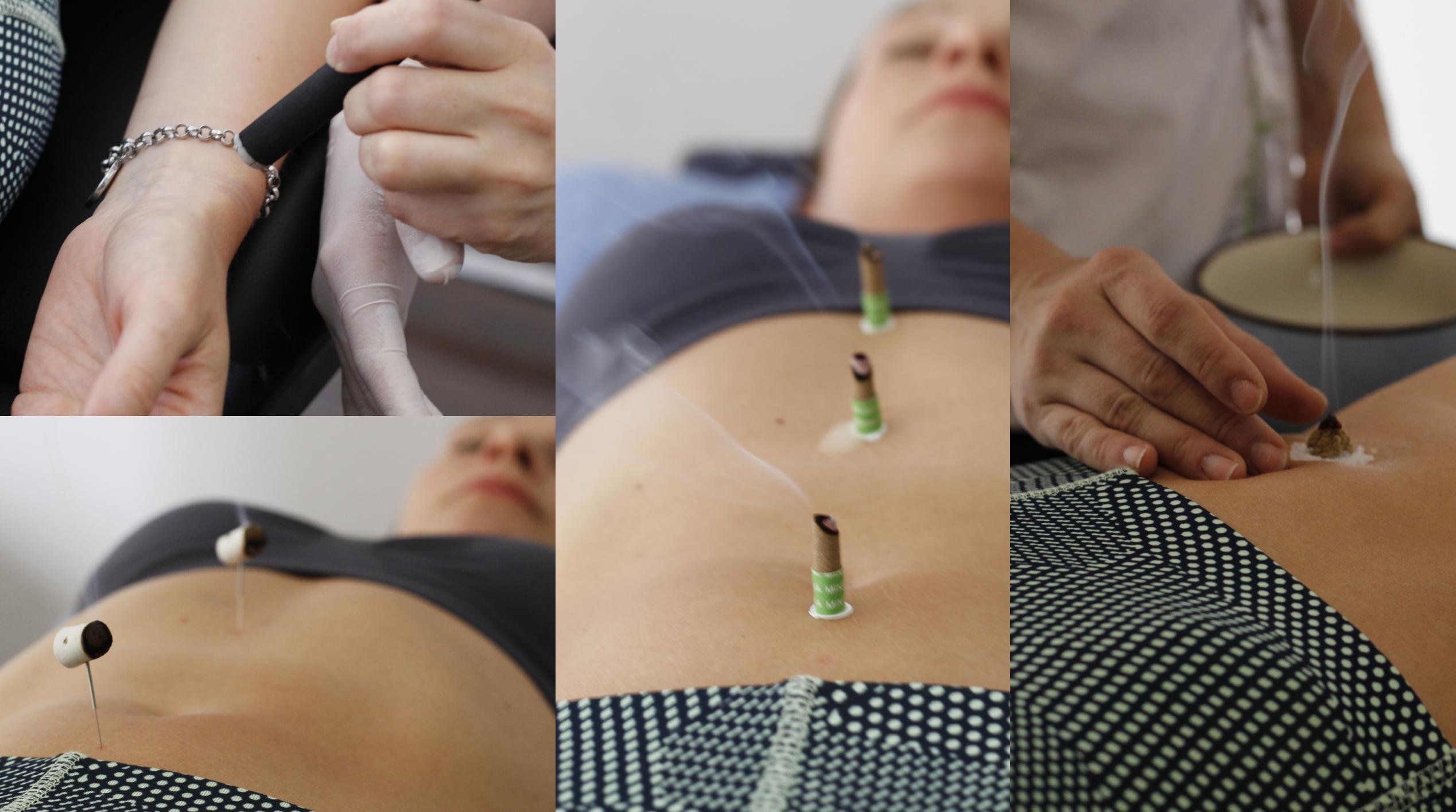 Esta estimulación con calor tenue puede utilizarse como apoyo en los tratamientos con acupuntura